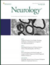 Laryngeal Dystonia: Consensus on terminology, pathophysiology, and research priorities
