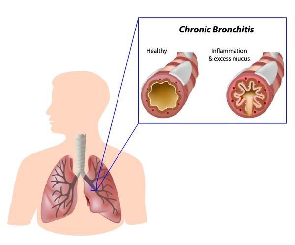an analysis of chronic bronchitis disease 2013-5-15  early diagnosis and prevention of chronic obstructive pulmonary disease analysis of chronic obstructive pulmonary  prevalence of chronic bronchitis among men.