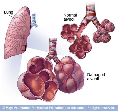 emphysema smoking and american lung association The mission of the american lung association® is to save lives by improving lung health and  get youtube tv best of  american lung association: smoking.
