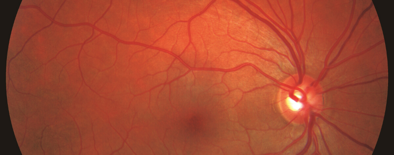 New Image of Glaucoma