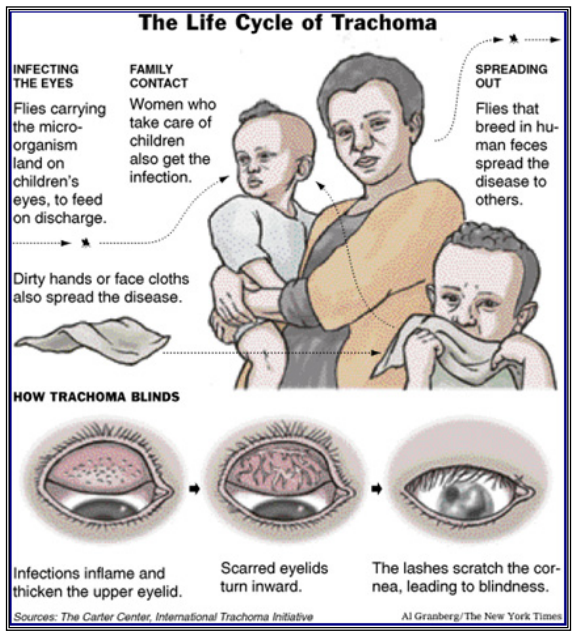 Life cycle of Trachoma
