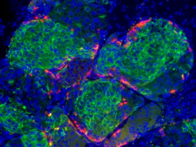 Human beta cells derived from stem cells (Credit: Melton Lab)