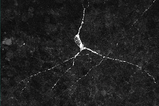 Stem-cell derived hypothalamic neuron