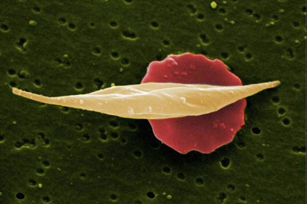 Researchers find sickle cell disease's Achilles' heel