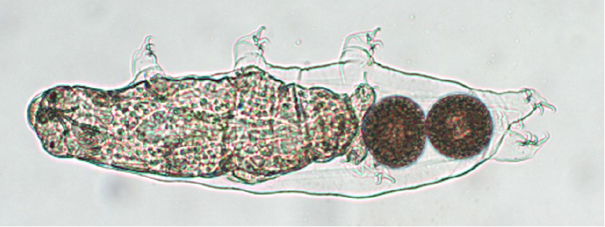 Microscope image of a tardigrade (aka water bear) with its six legs