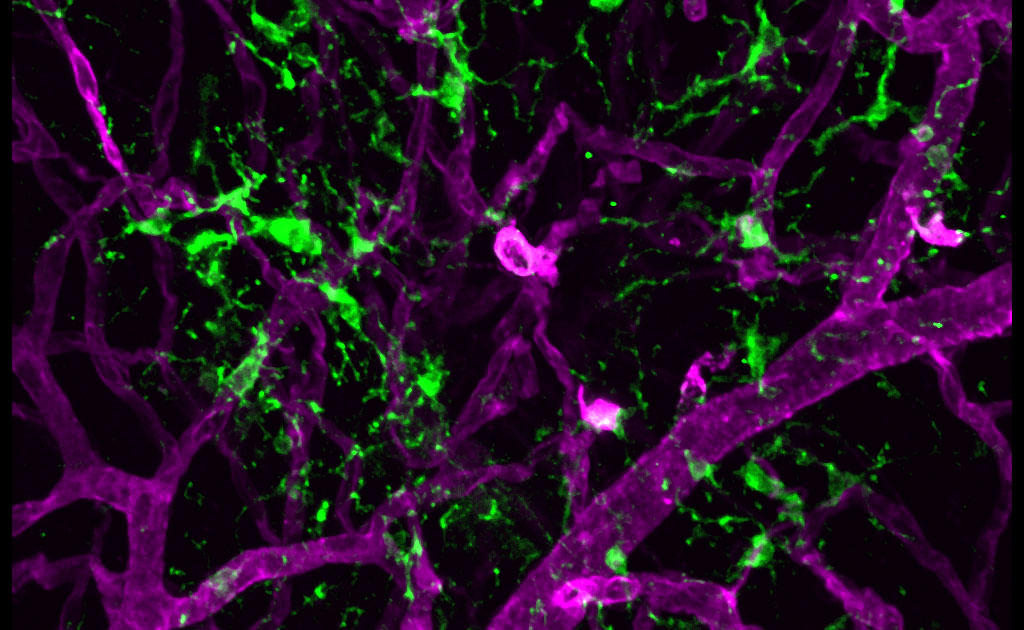 photo of microglia in the retina