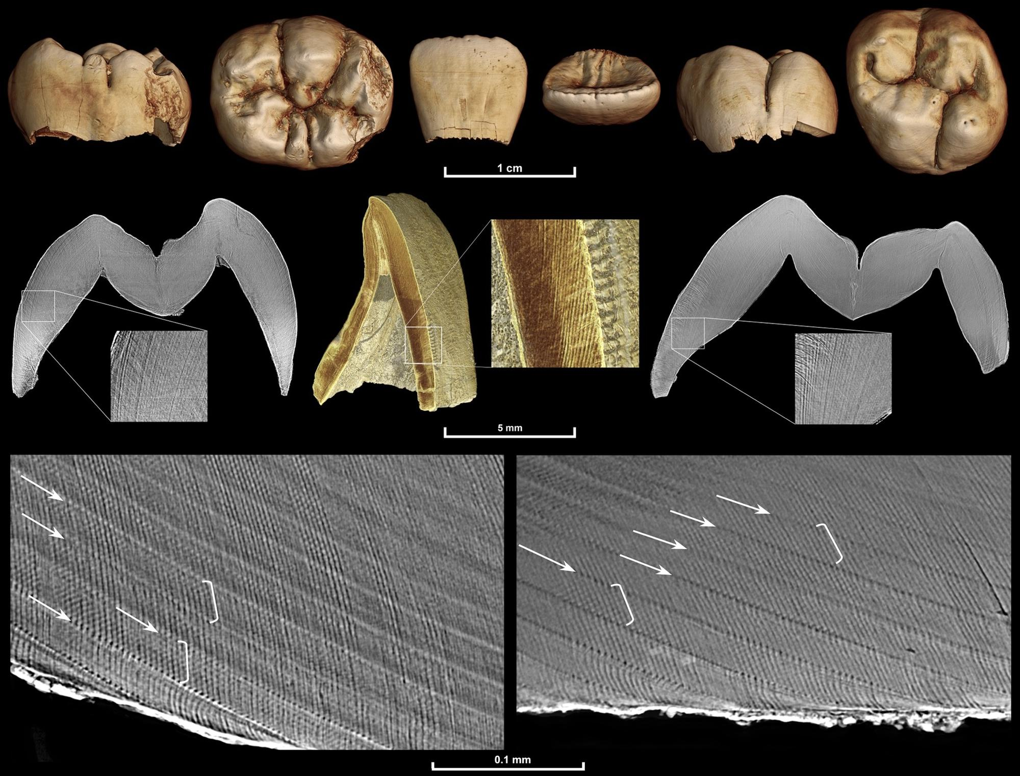 Multiscale synchrotron imaging of a fossil Homo juvenile