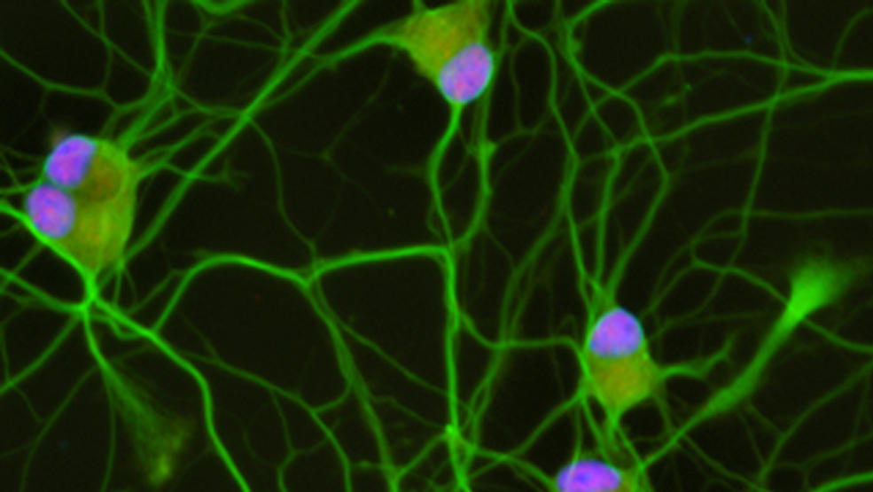 Scientific image of human stem-cell-derived motor neurons, c. Joseph Klim