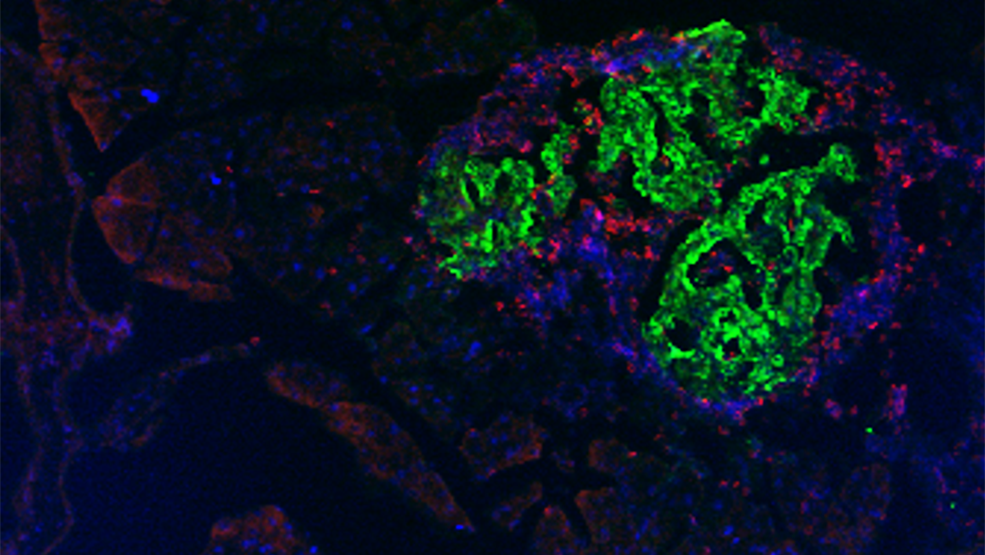 Microscopy image of insulin-producing beta cells.
