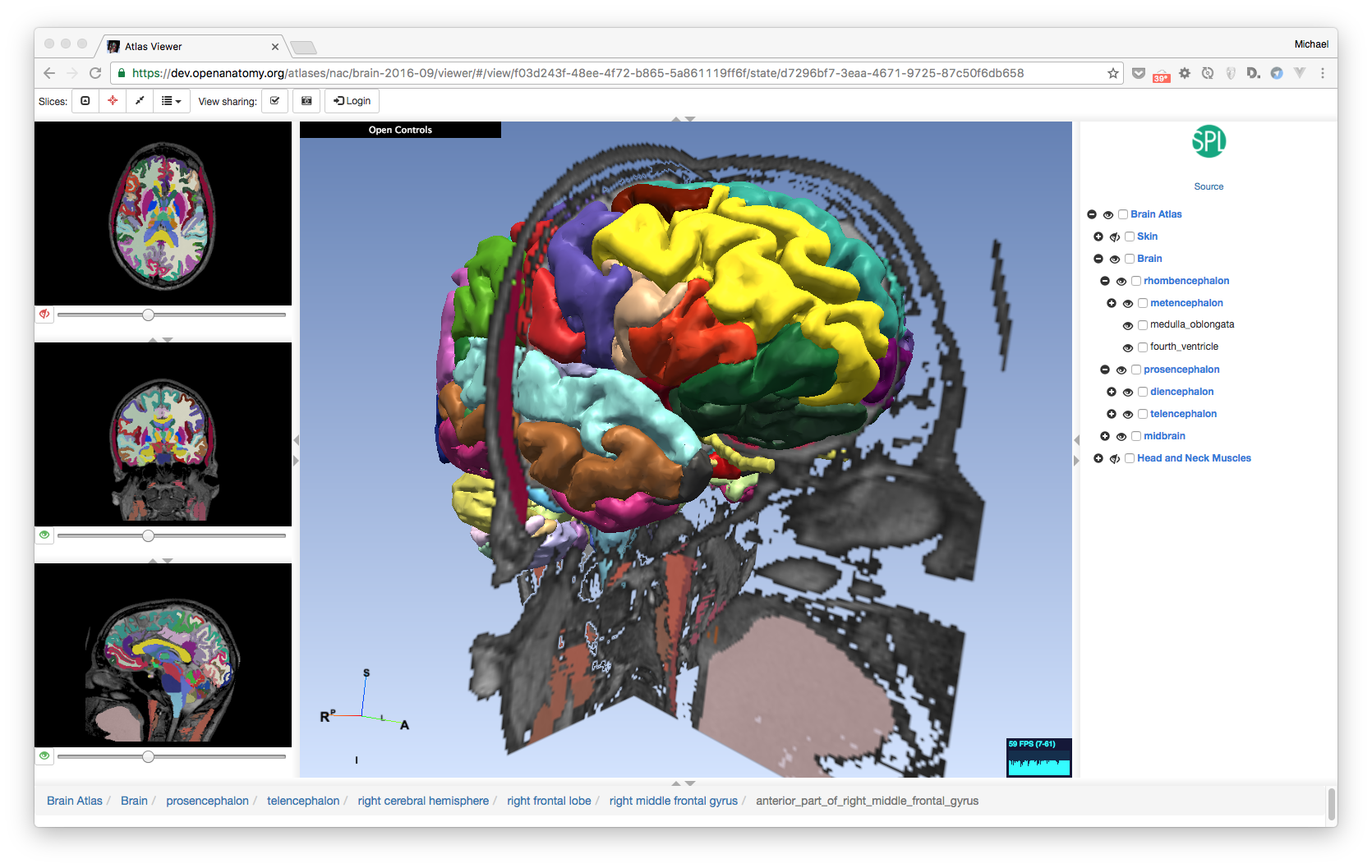 Open Anatomy Browser Paper Published in Frontiers in Neuroinformatic ...