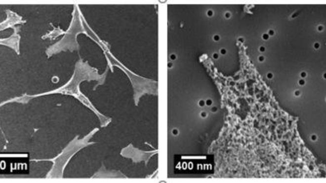 Representative SEM image of cells cultured on 80 nm smooth membrane (left) and local zoom (right) - Jing Xia