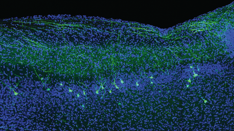neurons_of_the_piriform_cortex_projecting_to_the_olfactory_bulb_were_retro-labeled_with_gfp