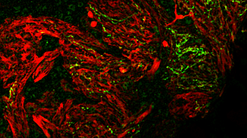 olfactory_receptor_neurons_in_the_glomerular_layer_of_the_olfactory_bulb