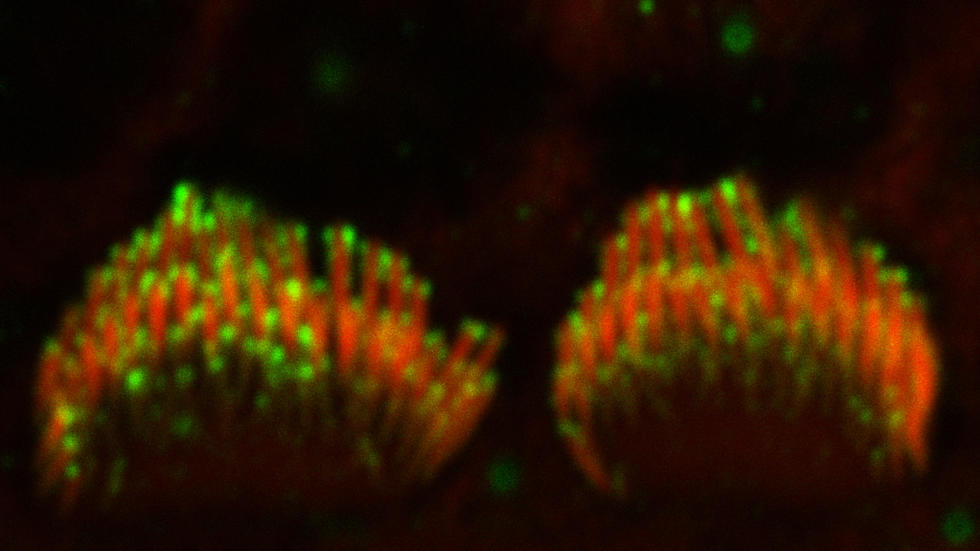 Inner hair cell stereocilia bundles labeled with anti-Cdh23 antibodies
