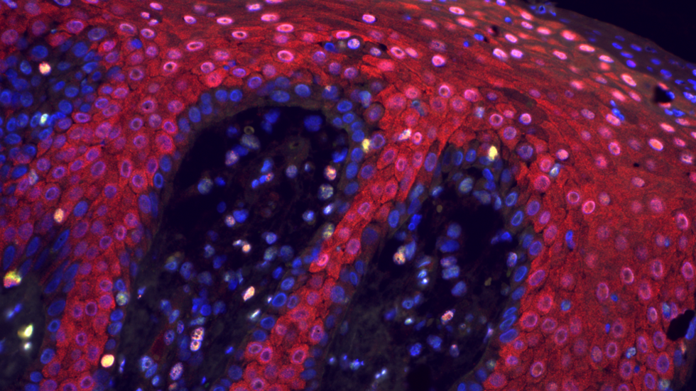 Microscopy image of skin affected by psoriasis.