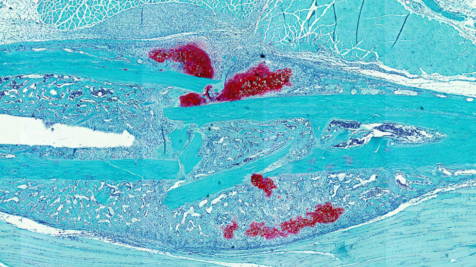 Microscopy image of mouse bone fracture.