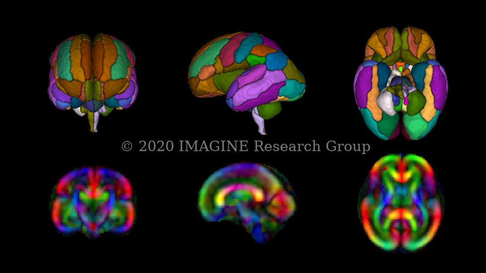3D rendering of fetal brain atlas parcellation and diffusion brain atlas