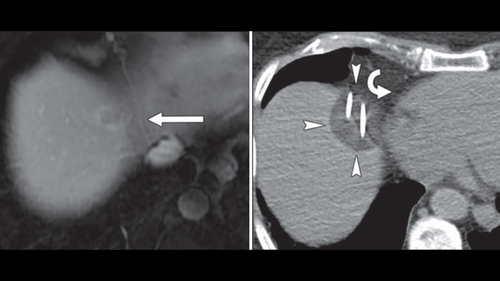 Image-Guided Cryoablation of Hepatic Tumors