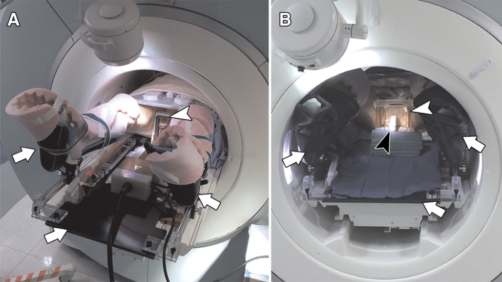 Transperineal In-Bore 3-T MR Imaging-guided Prostate Biopsy