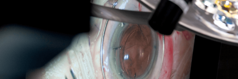 Advances in Corneal Surgery: A focus on DMEK for Fuchs' Dystrophy