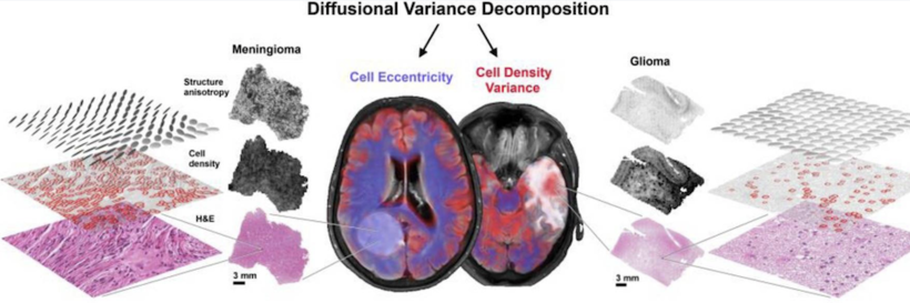 Diffusion MRI and Tumor Heterogeneity