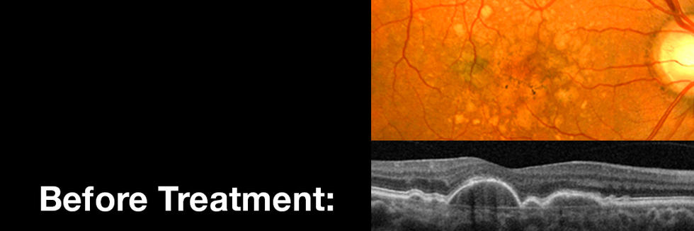 Patients with High-Risk Macular Degeneration Show Improvement with High-Dose Statin Treatment