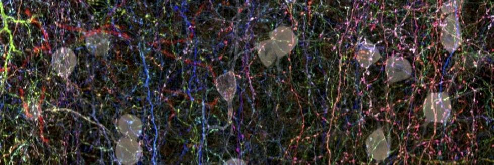 Cortical Layer 1 Interneurons