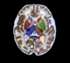 Labelled MRI of the fetal brain